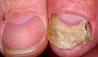 Форма онихолизиса