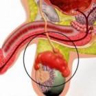 Эпидидимит. Причины возникновения и лечение