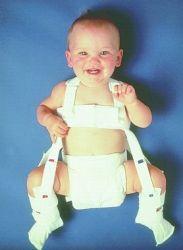 Как лечить дисплазию тазобедренных суставов у ребенка