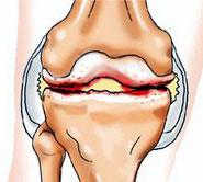 Лечение артрита. Мануальная терапия