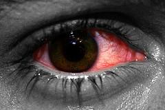 Хламидиоз глаз. Симптомы и пути заражения