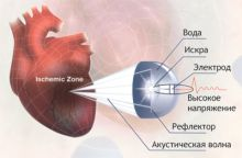 Ударно-волновая терапия сердца. Суть метода