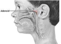 Аденоиды и методы лечения
