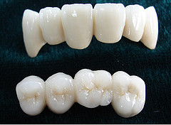 Безметалловая керамика – «белое золото» в стоматологии