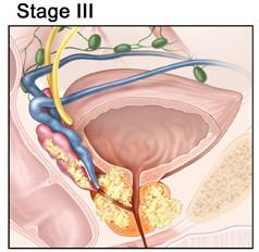 рак простаты третьей стадии