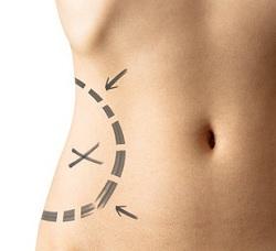 Комплекс упражнений для устранения излишков жира на боках
