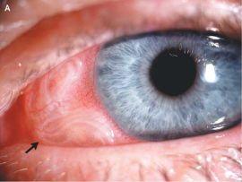 паразиты под кожей головы человека