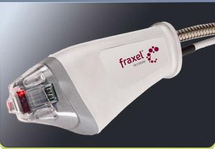 Fraxel - инновационный метод омоложения лица