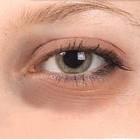 В чем причина возникновения синяков под глазами, и как с ними бороться?