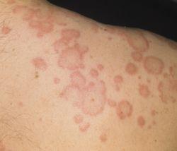 Кожные формы проявления аллергии
