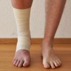 Перелом лодыжки – причины, симптомы, лечение