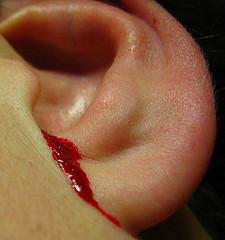 Как остановить кровотечение из уха?