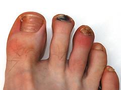 Лечим ушибленный палец на ноге