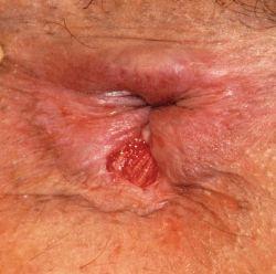 Лечение анальных трещин методами народной медицины