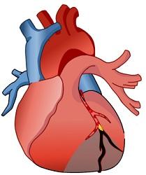Как распознать инфаркт? Неклассические симптомы