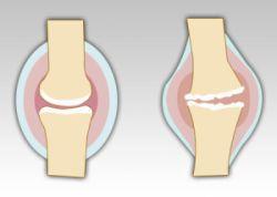 Ходьба может помочь больным артритом