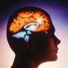 Симптомы микроинсульта. Молодые рискуют первыми