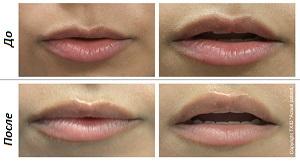 Увеличение губ - одна из самых востребованных косметологических процедур