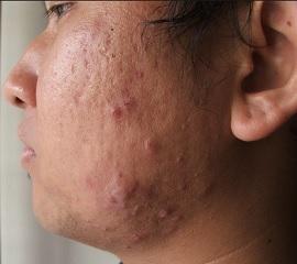 Фото аллергических прыщей на лице