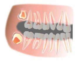 Что делать, если болит зуб мудрости? Снятие боли в домашних условиях