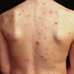 Прыщи на спине: причины возникновения и лечение