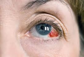 Почему лопаются сосуды в глазах?
