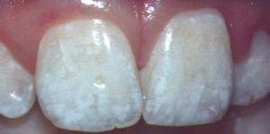 Зачем нужно фторирование зубов?