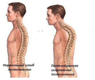 Ортопедический корсет на грудной и поясничный отдел