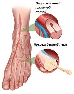 гомеопатия от холестерина