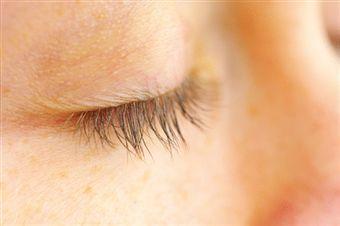 Шелушение кожи на веках глаз. Причины возникновения и методы лечения