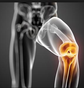 Хруст в коленях. Причины возникновения