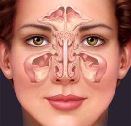 Синусит. Лечение в домашних условиях