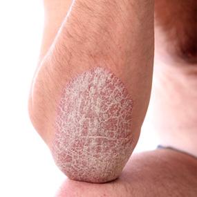 Грубая кожа локтей: домашние средства ухода
