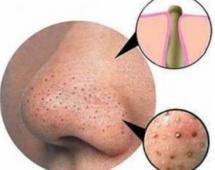 Как убрать черные точки на носу?