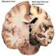 Деменция у пожилых людей – симптомы и ранние признаки
