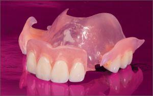 Преимущества нейлоновых зубных протезов