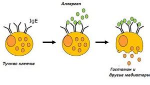 Как возникает аллергия?