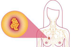 Топ-18 канцерогенов, ведущих к раку груди