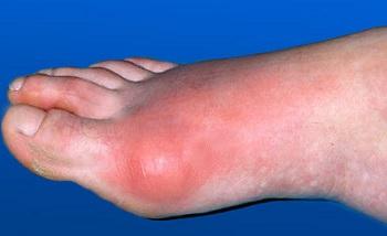 подагра на большом пальце ноги