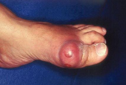 большой палец ноги с огромным подагрическим тофусом
