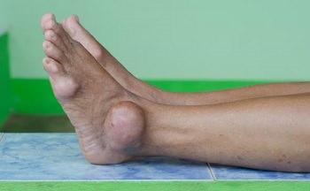 нога, пораженная подагрическим артритом