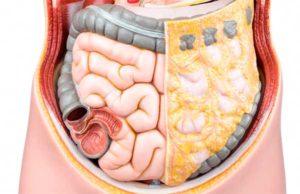 Схематическое изображение больного и здорового кишечника человека