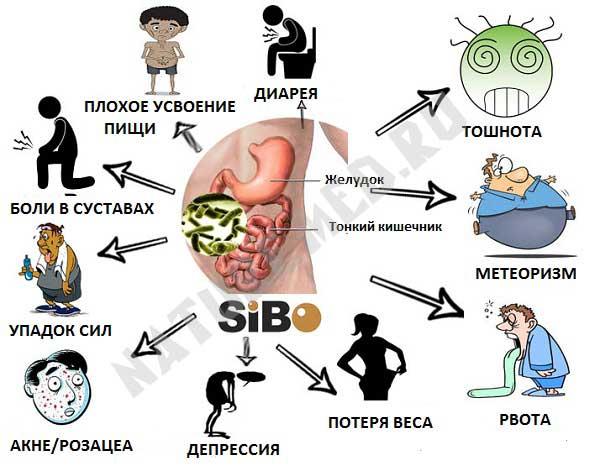 инфографик - список симптомов избыточного бактериального роста