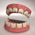 восстановить утраченный зуб можно всего за полчаса