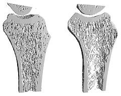 Остеопороз. Причины возникновения
