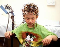 Эпилепсия. Основные признаки заболевания, методики лечения