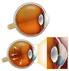 Глаукома, или как сохранить глаза