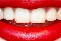 Лечение зубов сегодня - отбеливание и лечение зубов от кариеса