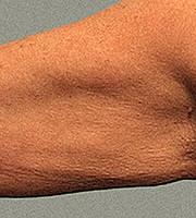 Медовый массаж и кофейные обертывания для борьбы с целлюлитом рук