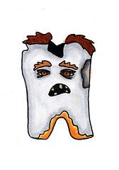 Современное протезирование зубов без обточки